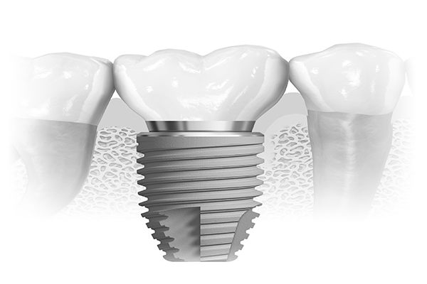 dental implant with crown Harley street